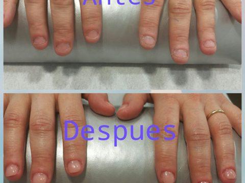 Uñas deterioradas